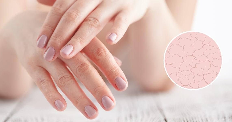 Шелушится кожа на руках: причины и способы предотвращения