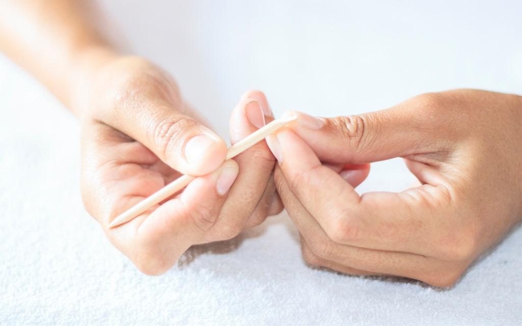 сухая кожа вокруг ногтей: как ухаживать